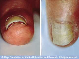 white patches fingernails - Thyroid Cancer/Nodules