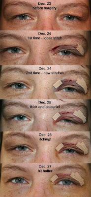xanthelasmata surgery - progress