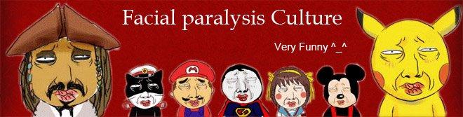 Facial paralysis Culture