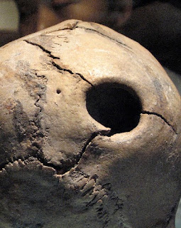 5,000 Years Ago Skull Surgery A Success