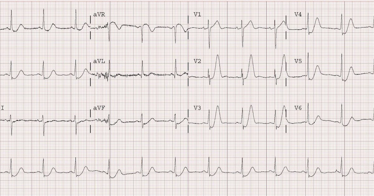 sc 1 st  Dr. Smithu0027s ECG Blog & Dr. Smithu0027s ECG Blog: Hyperacute T waves