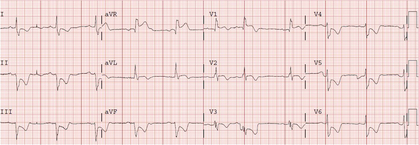 angina pectoris prinzmetal