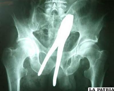 radiografias-alicate-en-el-ano-operacion-quirurgica.jpg