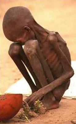 Pobreza extrema en África (hambruna y desnutrición)
