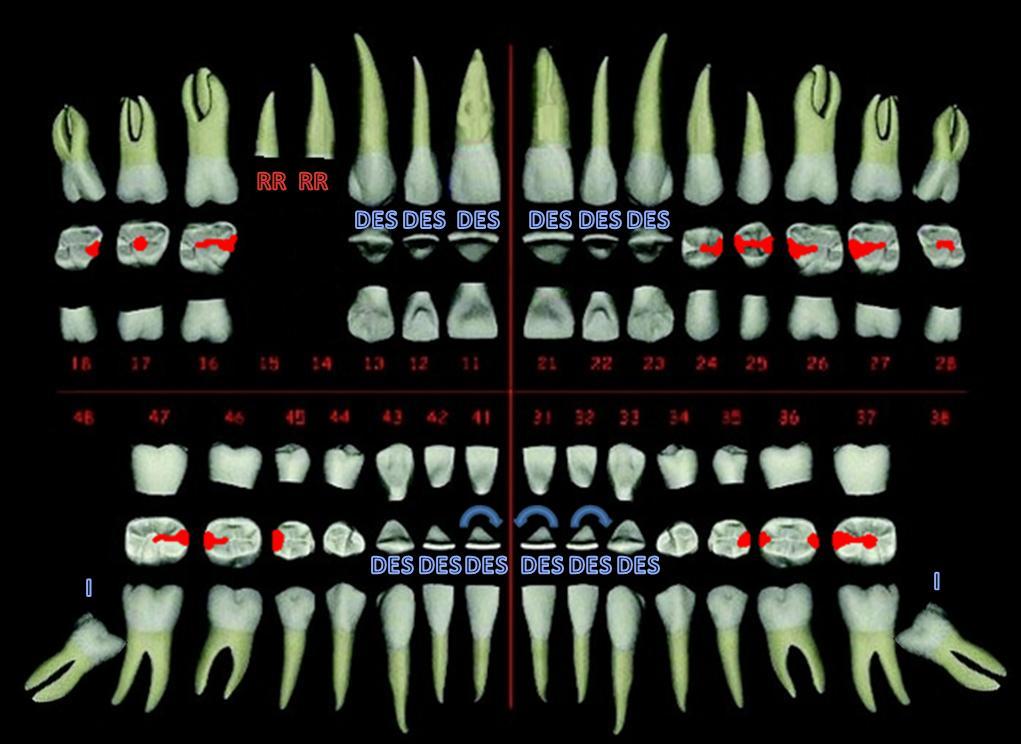 Odontograma+dental