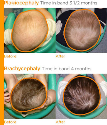 Adult with plagiocephaly pity, that