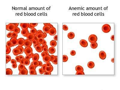 NANDA Anemia