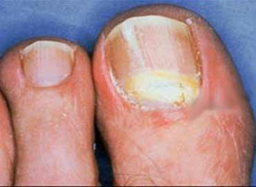 Klotrimazol la solución del hongo sobre las uñas