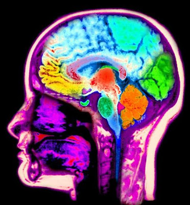 brain-image-brain mapping-scan