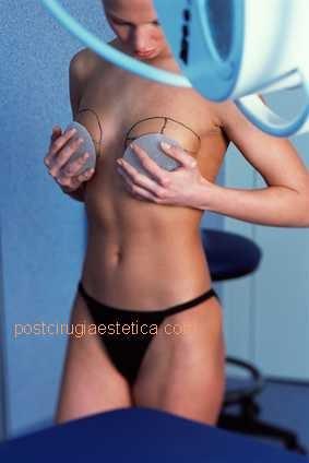 Imagen de implante de desastre mamario