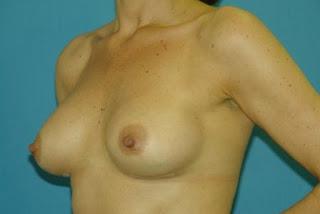El aumento de la dimensión del pecho por el masaje