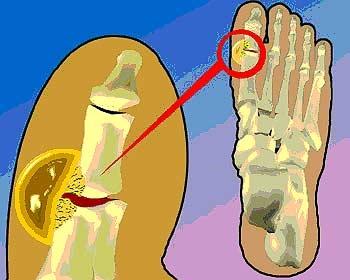 el vinagre sube el acido urico vinagre de manzana contra la gota que cantidad de acido urico es la normal en hombres