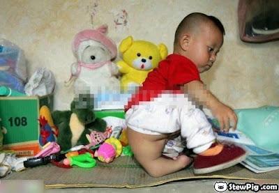 Seorang Anak Dilahirkan dengan 3 Kaki