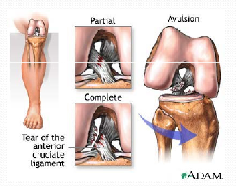 the anterior cruciate ligament acl injuries