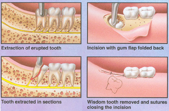 teeth diagram with labels. After the tooth is removed,