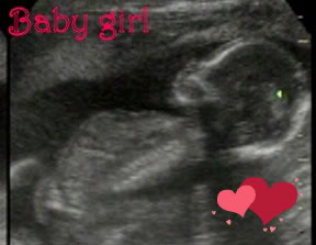 [Babygirl.jpg]