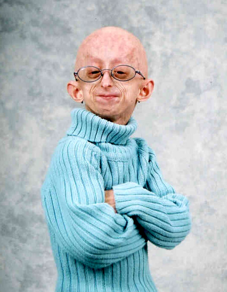 Las enfermedades más raras... Progeria8