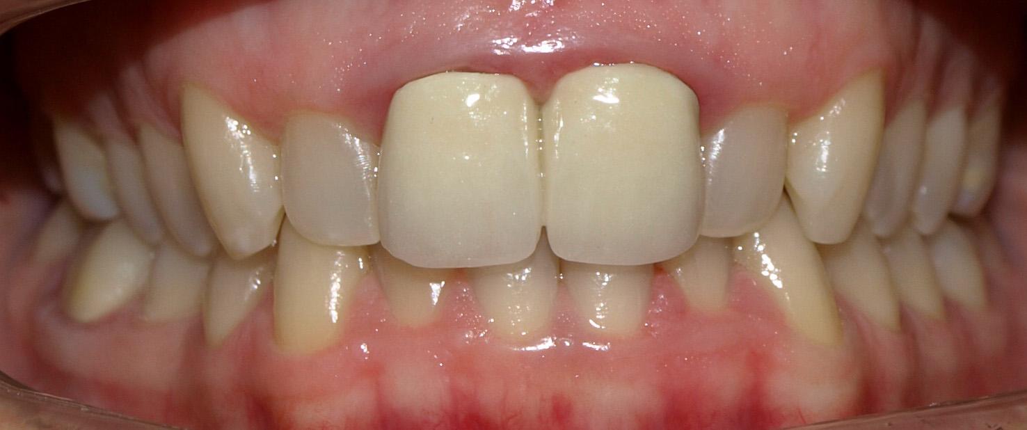 Resultado de imagen de inflamación encia alrededor de corona dental