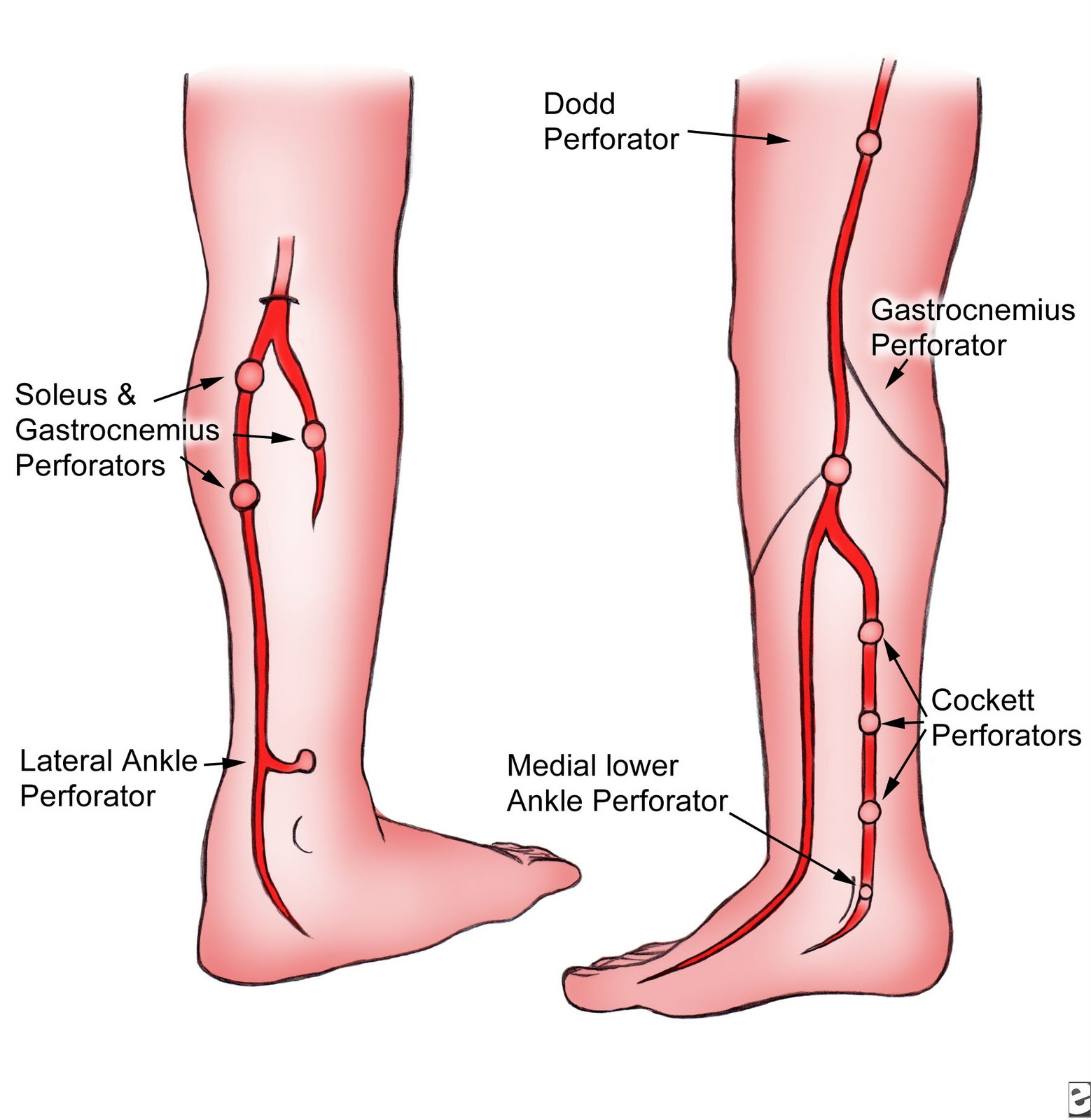 RadiologySpirit: 2010-07-11 of Peripheral arterial insufficiency icd 9