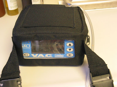 vac machine for wounds