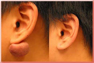 keloid ear