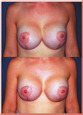 breast implants symmastia synmastia