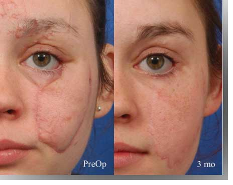 embrace scar therapy. circular face scar embrace therapy
