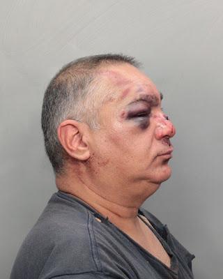 Brutal paliza en Miami a un bloguero pro-cubano Varela+foto+1