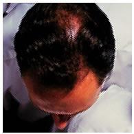 Chute de cheveux de type alopécie androgénétique.