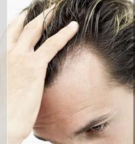 Déterminer l'étendue de la Chute de Cheveux