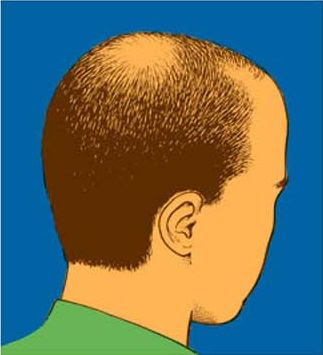 Causes Hair Loss, Baldness