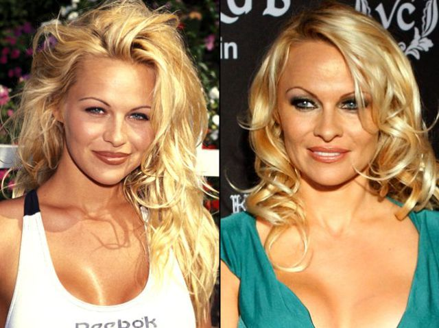 "photo of celebrities plastic surgery в""– 117947"