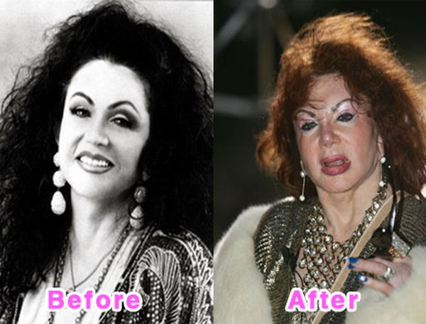 Top 10 Bollywood Plastic Surgery Disasters: Before After ...