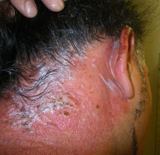 Allergic Reaction To Just For Men Beard Dye 2015 | Personal Blog