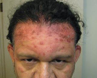 Dangerous Hair Dye June 22009 Hair Dye Allergy Reaction