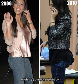 Kardashian Fake Boobs on The Rabbit S Rabbit  Has Kim Kardashian Had Surgey    Before And After