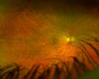 Retinal eye scan