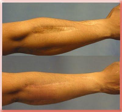 arm scar+hipertrof Cicatrizes Hipertroficas, Tratamentos, e causas