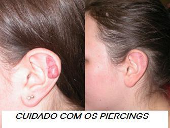 Keloid plastic surgery Cicatriz Queloide