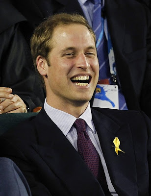 is prince william balding. prince william balding 2010.