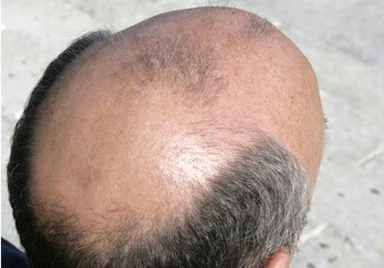 Male pattern baldness? - Yahoo! Answers