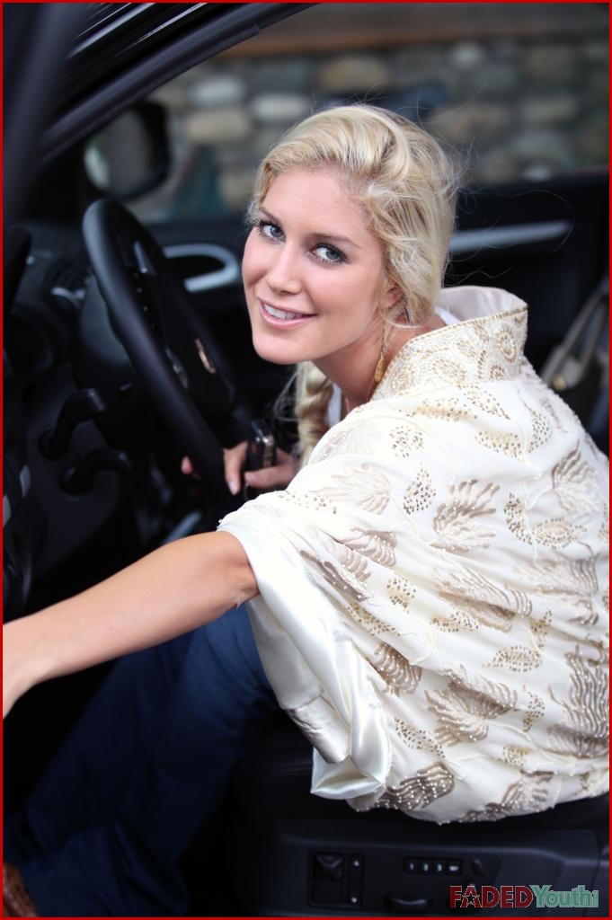 heidi montag after surgery photos. heidi montag before and after