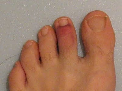 Pain at the Base of the Middle Toes