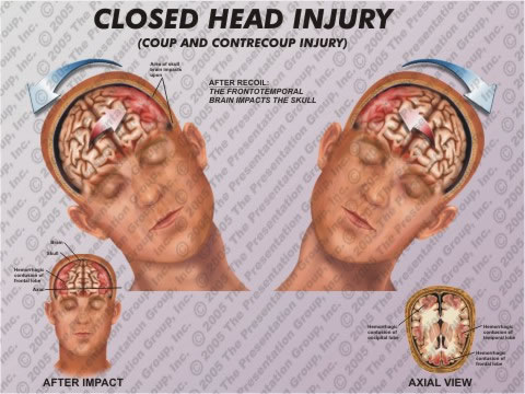 machado-xxx-dating-brain-injury-girls