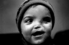 bambino malformato dal fosforo Nato
