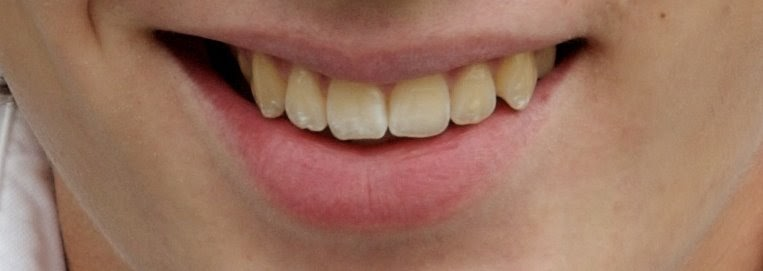 Take Out Photo Four Methods For Teeth Whitening In Photoshop