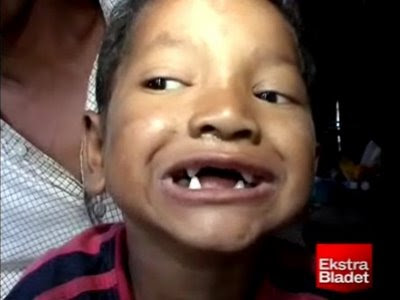 7-Year-Old With Vampire Teeth