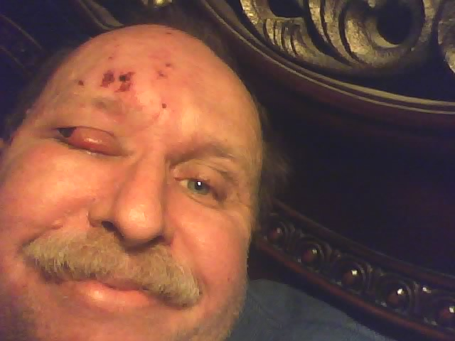 Concrete facial swelling rash and