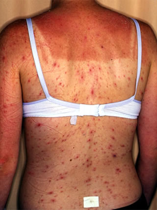 black herpes pictures