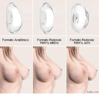 Os preços do peito implantam em Krasnodar